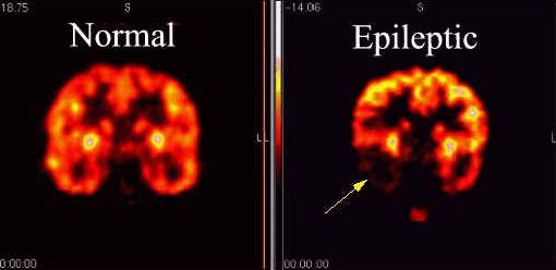 אפילפסיה
